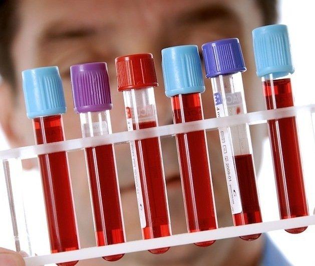 Пиво при анализе крови